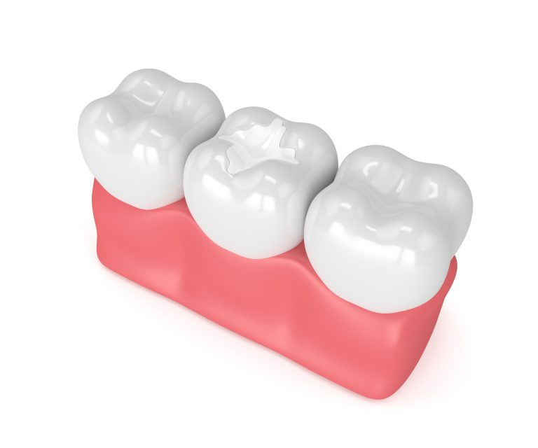 3d Render Of Teeth With Dental Composite Filling